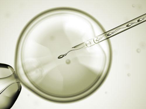 IVF - ICSI